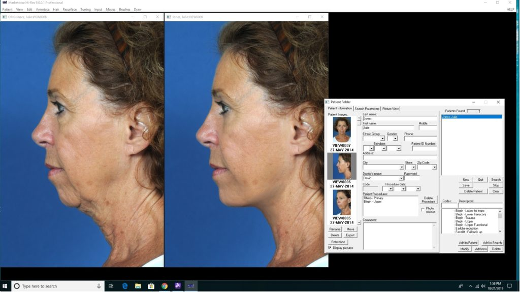 Screenshot of Plastic Surgery Before After using our MarketWise software