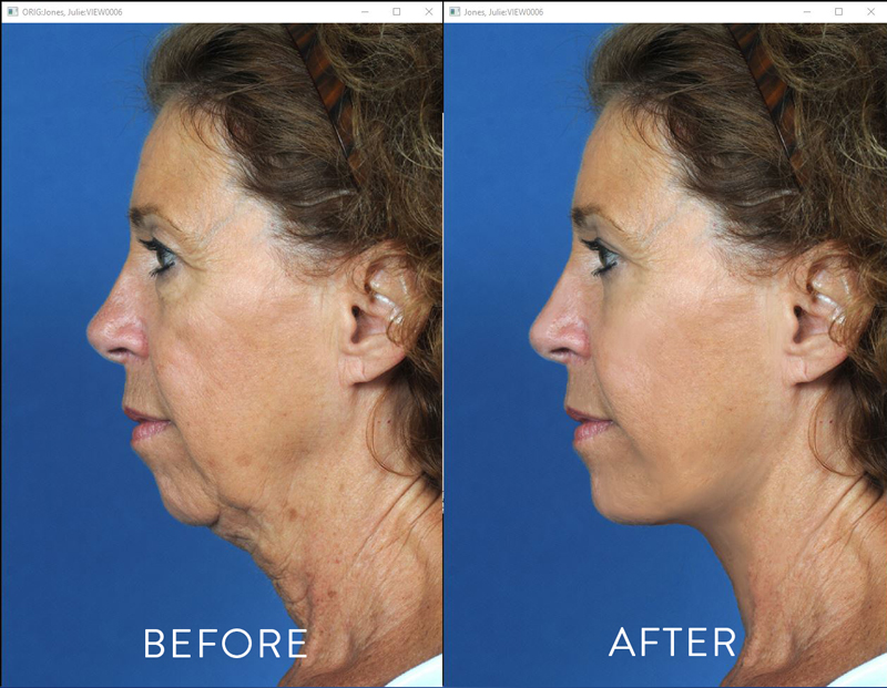 Before and After Photo produced by Plastic Surgery Archiving Manipulation Software MarketWise