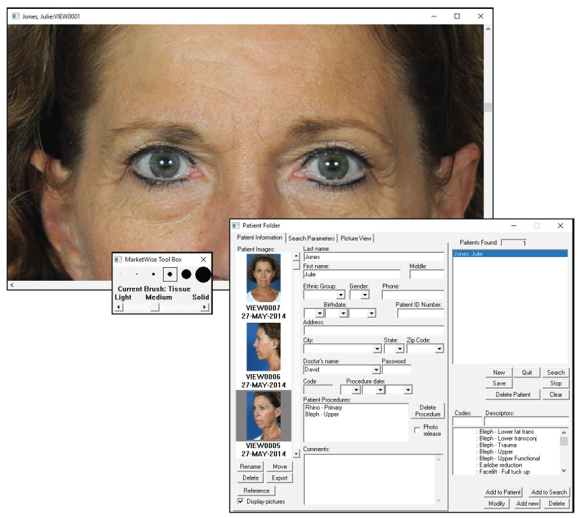 Screenshot of Plastic Surgery Software MarketWise in use. Showing Before After Photos.